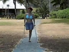 Amputee at the beach