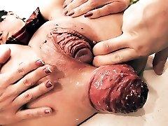 Wildly Massive Prolapse! Cervix Exposure. Eggplant Penetratio